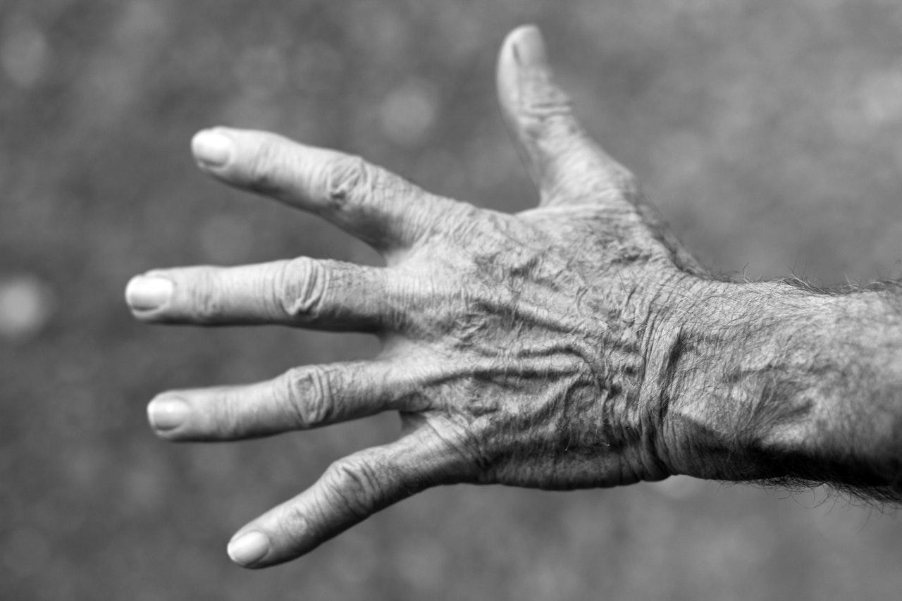 Osteoarthritis FAQ